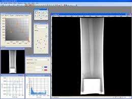 shawcor digital x ray software