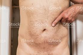 Human Belly Anatomy Man Pointing To Umbilical Hernia Belly Button Scar Stock Photo