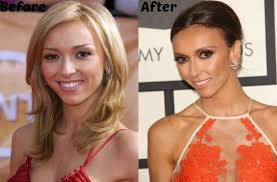 guliana rancic gums thinning hair giuliana rancic face lift and plastic surgery