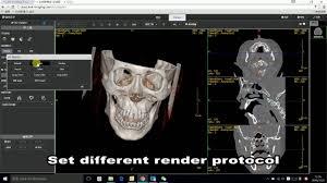 Skull Viewer Linkcloud Web 3d Dicom Viewer Youtube