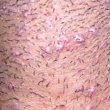 pubic hairs pics about ingrown pubic hairs after shaving and how to prevent