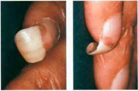 scar tissue and im nail nail disorders arthritis research