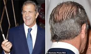 hair styles for women with center bald spots hollywood bad boy mel gibson bares his scalp