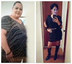 wanda before and after gastric bypass weight loss surgery with dr