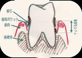 dental access 健康な歯と歯肉