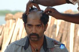 hairstyles to will increase hair growth good bye hair loss hair loss tips advice online tonsure or