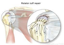 Anatomy Of Rotator Cuff Rotator Cuff Impingement