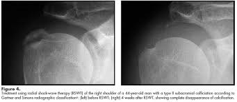 How To Palpate Subscapularis Calcific Tendonitis Of The Shoulder Physiopedia