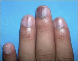 what are the effects of nutrient deficiencies on nails and how to