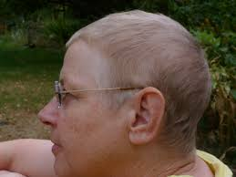 hairstyles for thin hair after chemo the adventures of a person with eclectic interests chemo hair regrowth