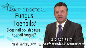 does nail polish cause toenail fungus chicago lincolnwood oak