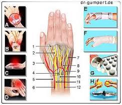 schmerzen in der handfläche schmerzen im handrücken