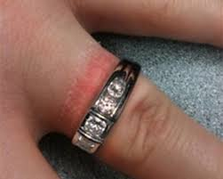 wedding ring dermatitis allergic reactions and skin conditions on your ring finger is my