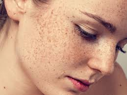 you can now tattoo freckles on to your face insider