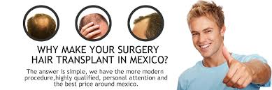 hair transplants in tj reviews hair transplant cost in mexico updated
