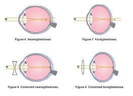 What Structure Of The Eye Focuses Light On The Retina Optics Of The Human Eye Carolina Com