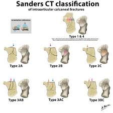 Anatomy Of The Calcaneus Sanders Ct Classification Of Calcaneal Fracture Radiology