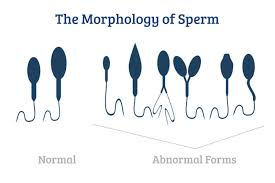 can sperm travel through clothes images Why fresh sperm is best jpg