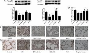 resolvin d1 stimulates alveolar fluid clearance through alveolar