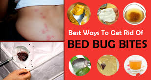 how can you get rid of bed bugs 18 effective home remedies to make you home bed bug free
