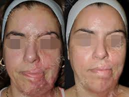 light therapy for acne scars laser therapy for scars
