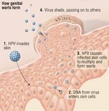 Serum Hpv human papilloma virus hpv harvard health
