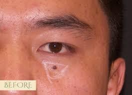 age sun spot mole removal sf aesthetics and laser center
