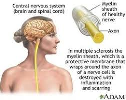 Ms Memes - symptoms of ms ms memes and more multiple sclerosis information s