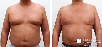 breast reduction ditesheim cosmetic surgery nc