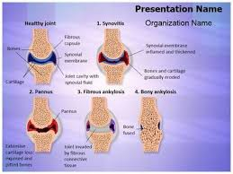 16 best arthritis powerpoint presentation templates images on