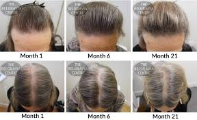 hair style wo comen receding hair growth success no longer do i need to wear hats and scarves