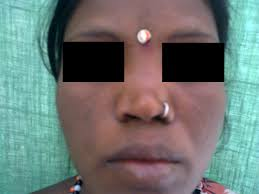 rhinological evaluation in leprosy