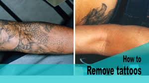how to remove tattoos at home fast chads tactic