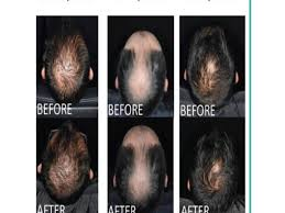 Stem Cells Hair Loss New Products Www Bodyluxe Ph Com