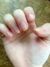 is going on with my nails pic beauty health and wellness