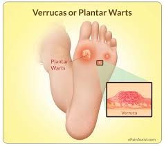 Home Remedies For Planters Warts by Verrucas Or Plantar Warts Causes Symptoms Treatment Salicylic