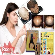obat rambut penumbuh rambut botak mengatasi rambut rontok obat penumbuh rambut cara menumbuhkan rambut rontok roomcantik