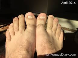 nail fungus update april 2016 nail fungus diary