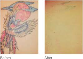 tattoo removal
