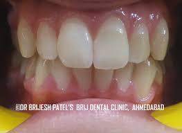 Does Laser Teeth Whitening Work Teeth Whitening In Ahmedabad Gujarat India Laser Teeth Whitening