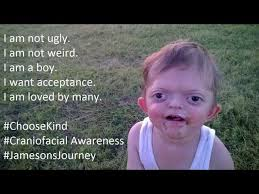 Most Offensive Memes Ever - mom fights back after son s picture used in cruel internet meme