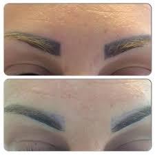 non laser tattoo removal medicare cosmetics