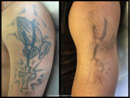 tattoo removal before and after va dc md laser smooth solutions