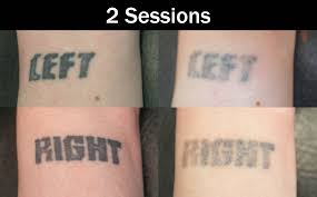 laser tattoo removal eternal art