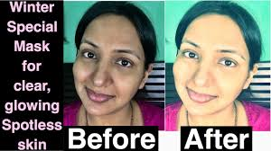 Skin Light How To Get Fair Skin Light Skin Glowing Skin Soft Skin Young