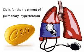 the use of cialis for the treatment of pulmonary hypertension