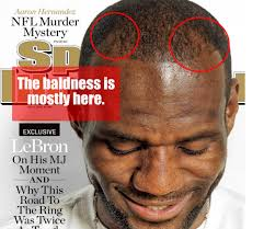 hair plugs for men did lebron james get hair plugs for the win