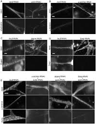 sarcomere formation occurs by the assembly of multiple latent