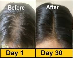 vitamins for hair over 50 evion 400 vitamin e pack of 50 capsules face hair pimple glowing