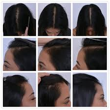 low level light therapy hair 27 y o female using low level laser therapy to treat and prevent